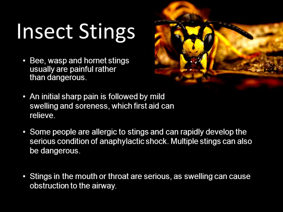 Insect Stings Bee, wasp and hornet stings usually are painful rather than dangerous.