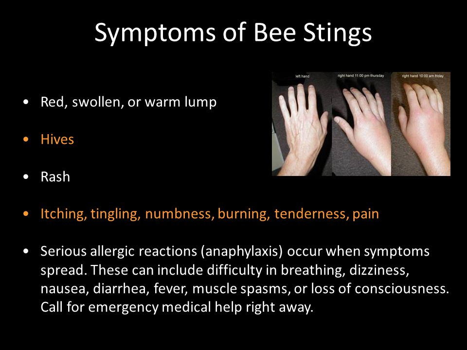 Symptoms of Bee Stings Red, swollen, or warm lump Hives Rash