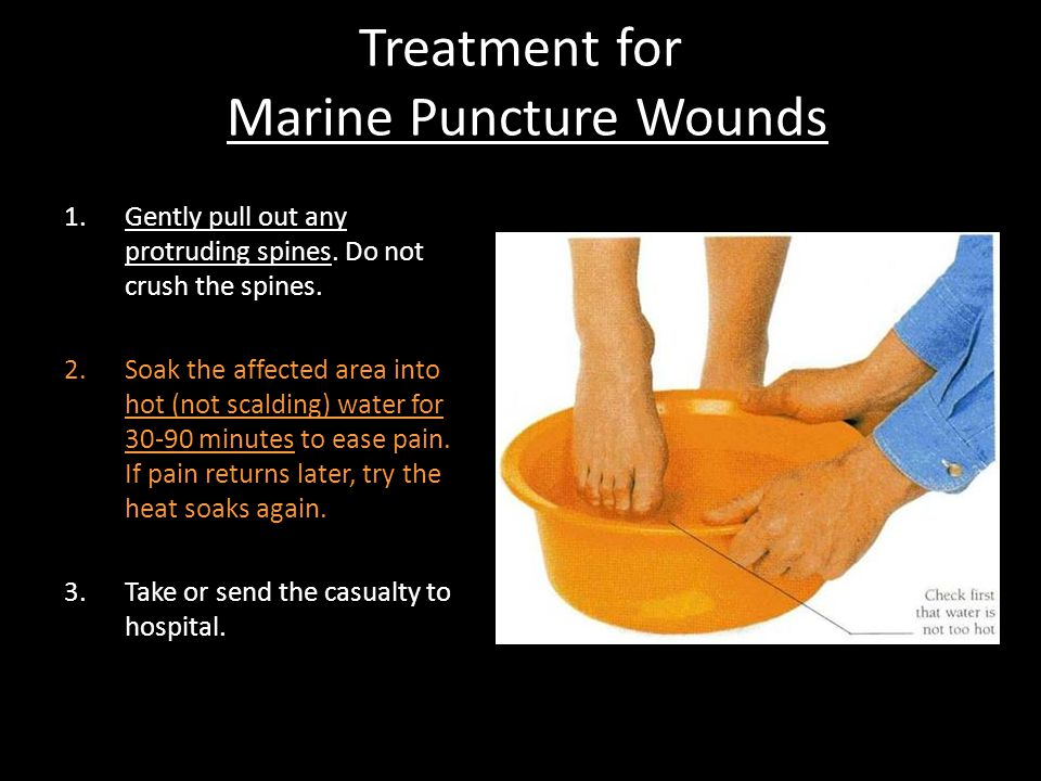 Treatment for Marine Puncture Wounds