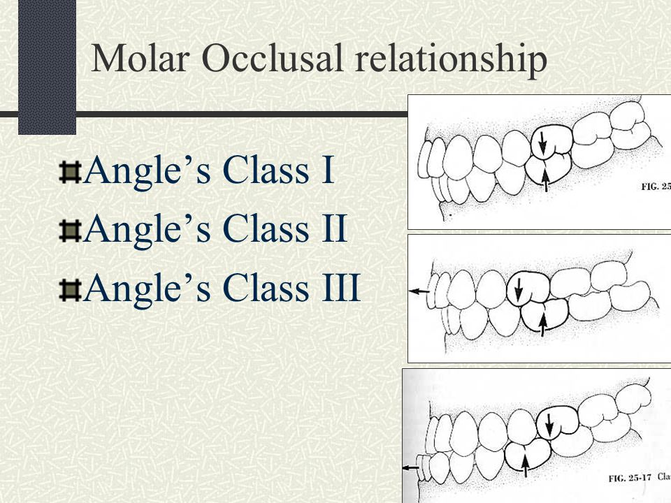 Molar Occlusal relationship