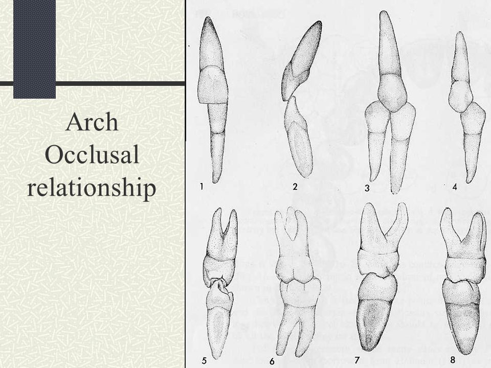 Arch Occlusal relationship