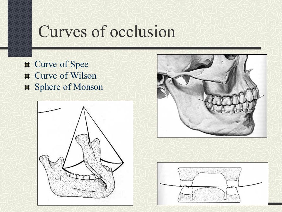 Curves of occlusion Curve of Spee Curve of Wilson Sphere of Monson