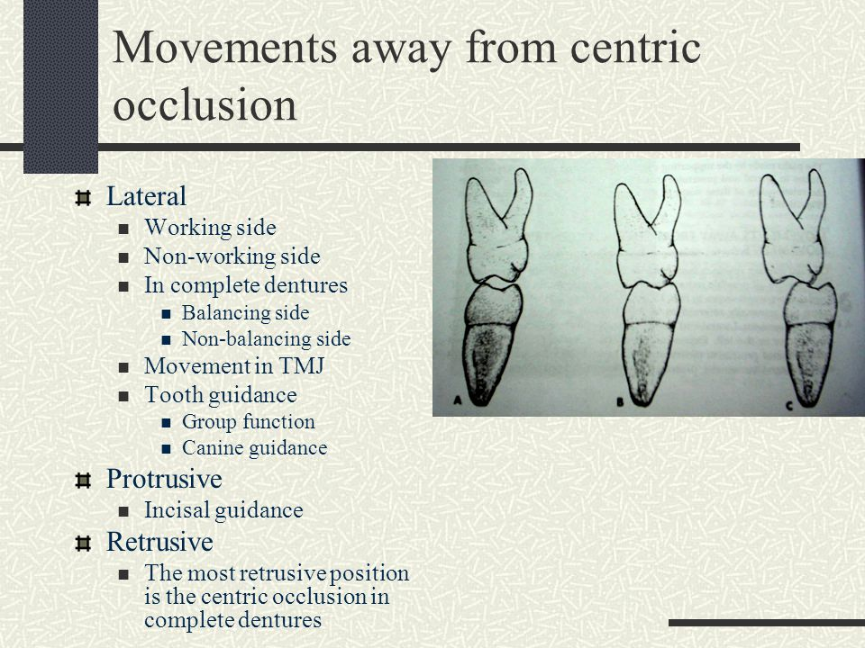 Movements away from centric occlusion