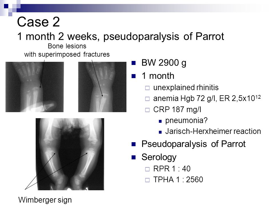 Case 2 1 month 2 weeks, pseudoparalysis of Parrot