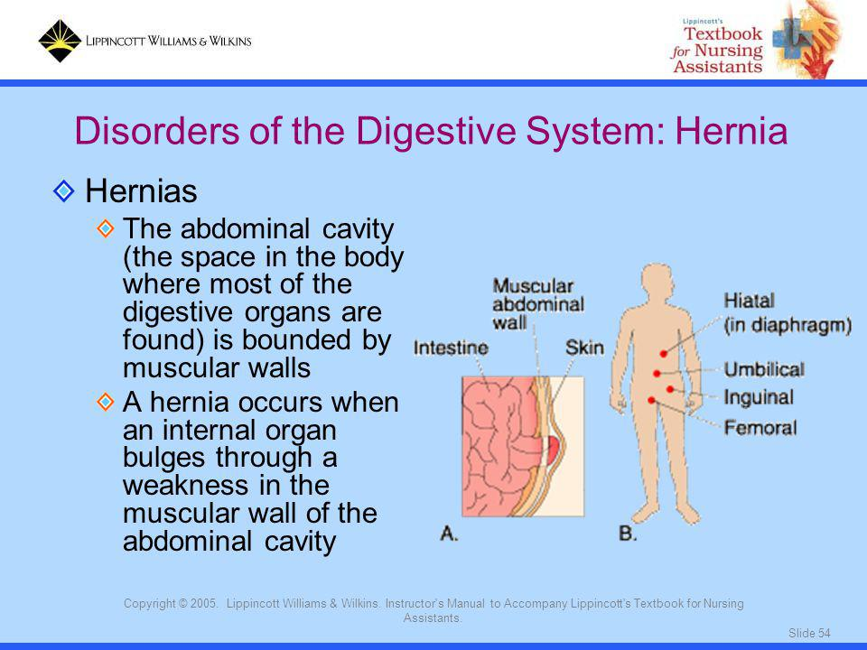 Disorders of the Digestive System: Hernia