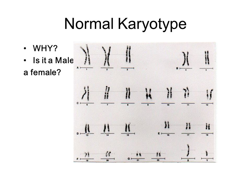 Normal Karyotype WHY Is it a Male or a female