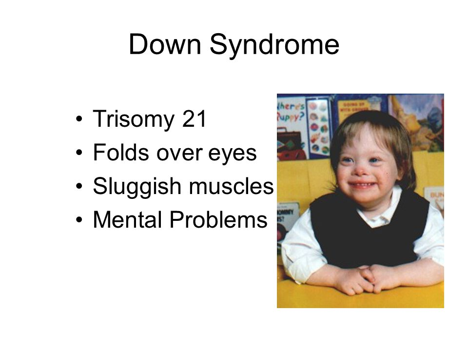 Down Syndrome Trisomy 21 Folds over eyes Sluggish muscles