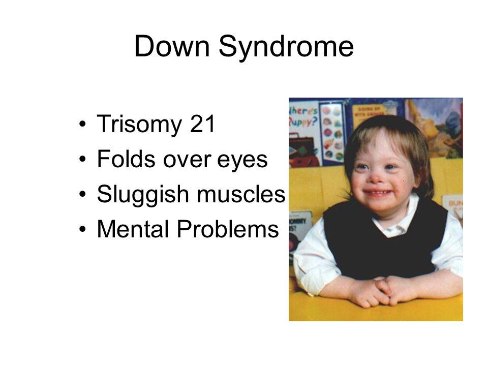 Down Syndrome Trisomy 21 Folds over eyes Sluggish muscles