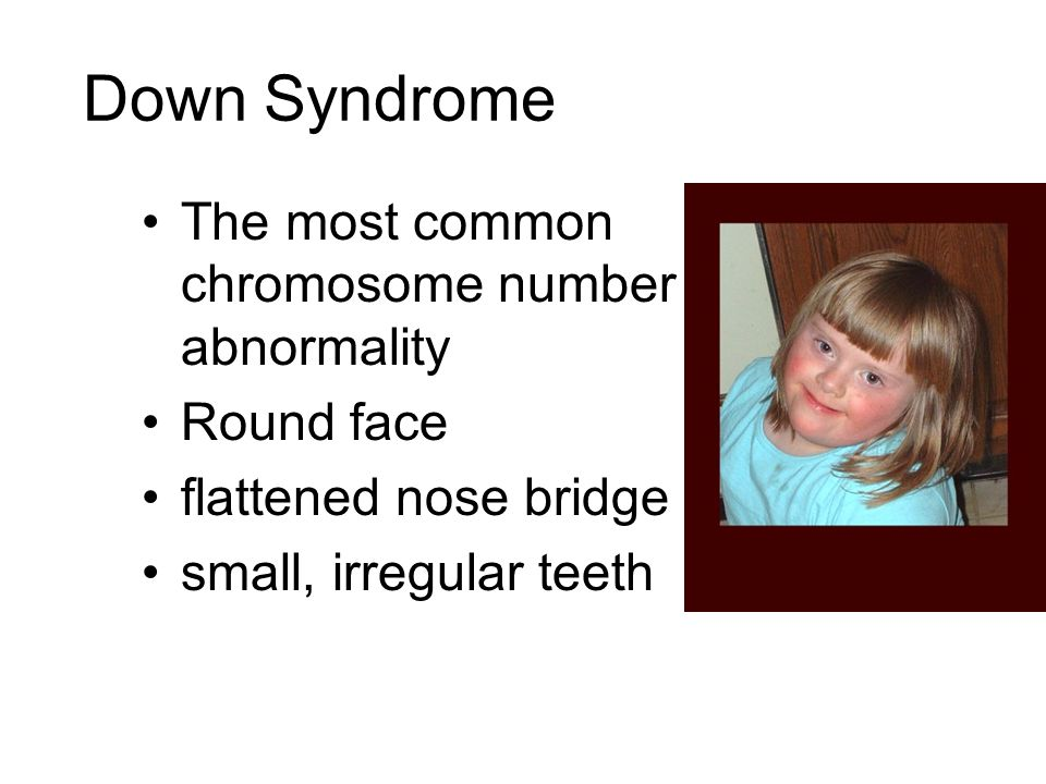 Down Syndrome The most common chromosome number abnormality Round face