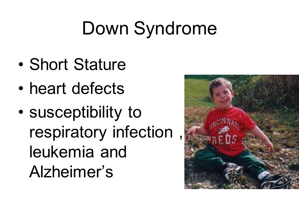 Down Syndrome Short Stature heart defects