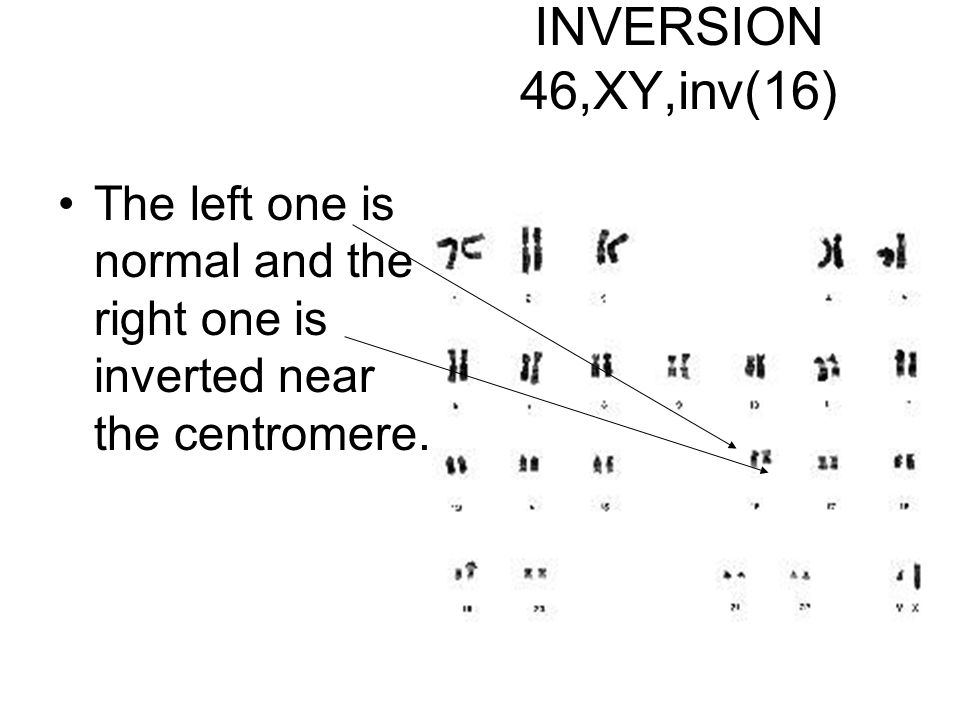 INVERSION 46,XY,inv(16) The left one is normal and the right one is inverted near the centromere.