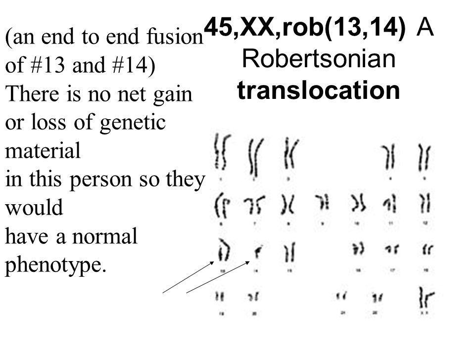 45,XX,rob(13,14) A Robertsonian translocation