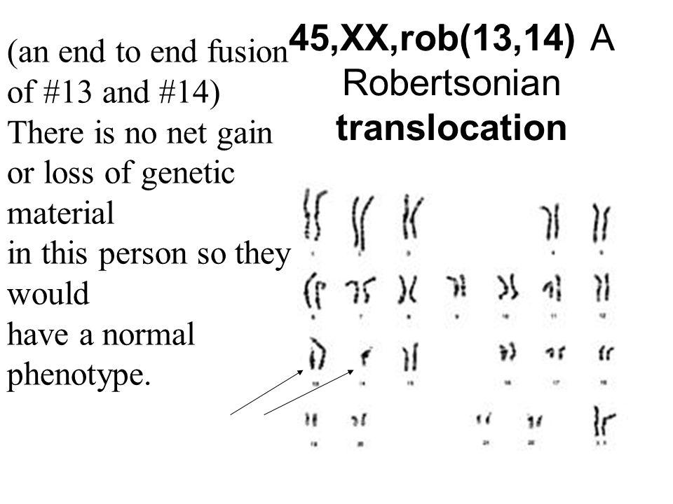 45,XX,rob(13,14) A Robertsonian translocation