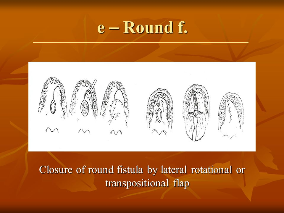 Closure of round fistula by lateral rotational or transpositional flap