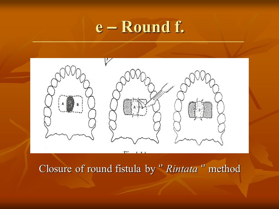 Closure of round fistula by '' Rintata '' method