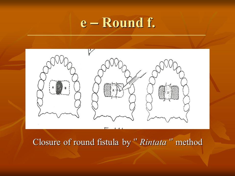 Closure of round fistula by '' Rintata '' method