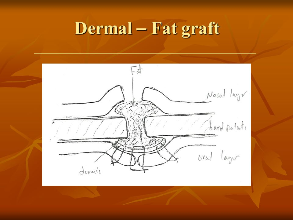 Dermal – Fat graft