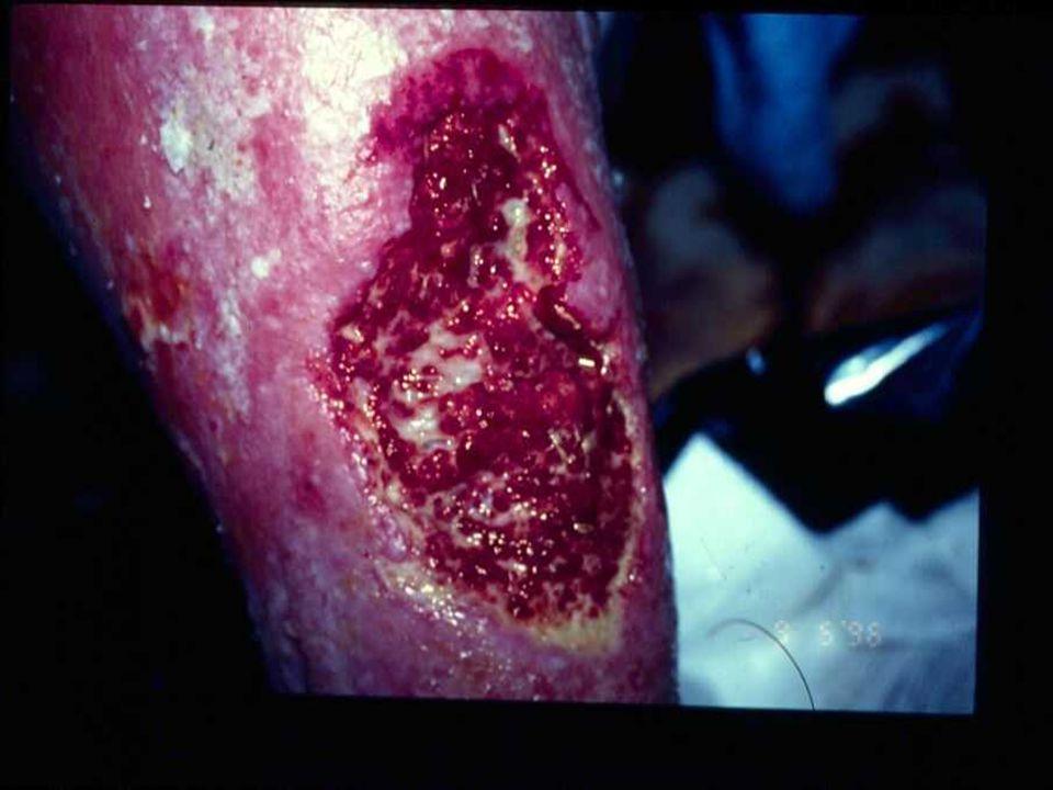 Same wound on Thursday