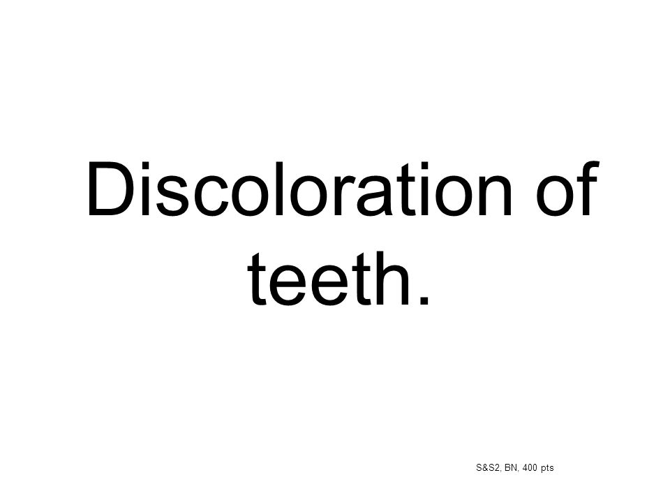 Discoloration of teeth.