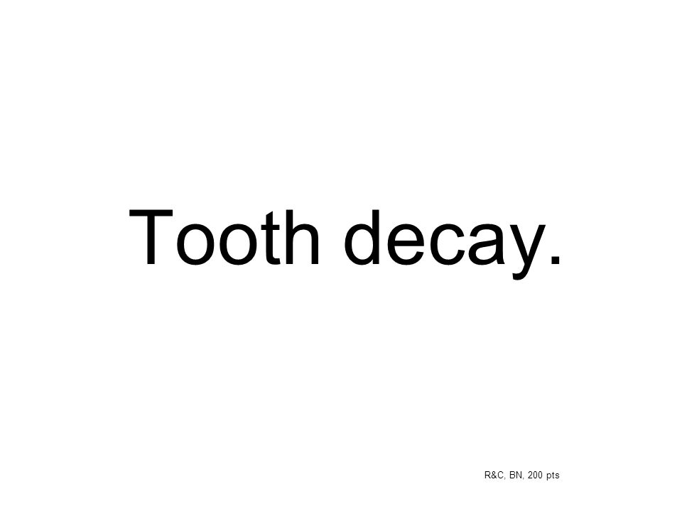 Tooth decay. R&C, BN, 200 pts