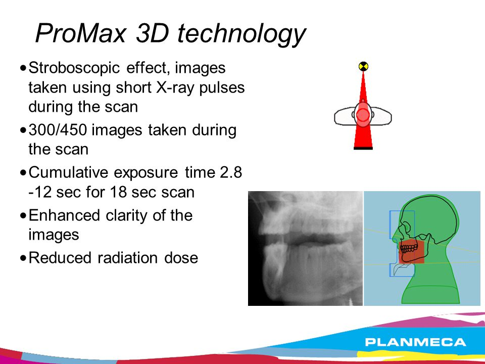 ProMax 3D technology Stroboscopic effect, images taken using short X-ray pulses during the scan. 300/450 images taken during the scan.