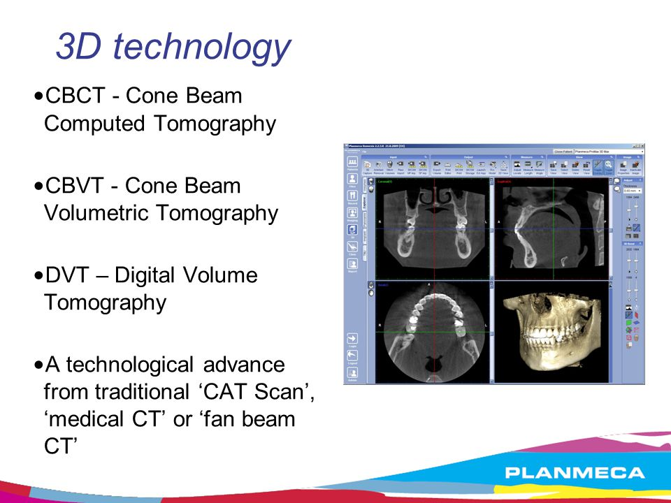 clinical applications of cone beam computed tomography Abstract this article presents a review of the clinical applications of cone-beam computed tomography (cbct) in different dental disciplines a literature search was conducted via pubmed for studies on dental applications of cbct published between 1998 and 2010.