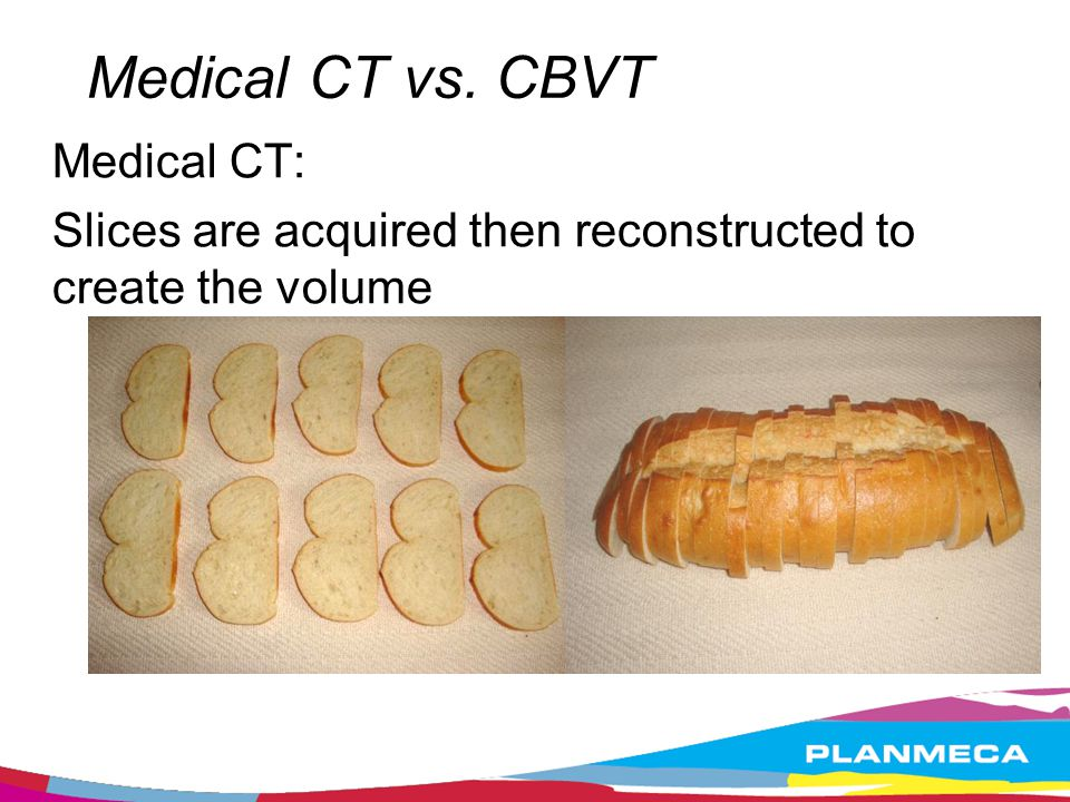 Medical CT vs. CBVT Medical CT: