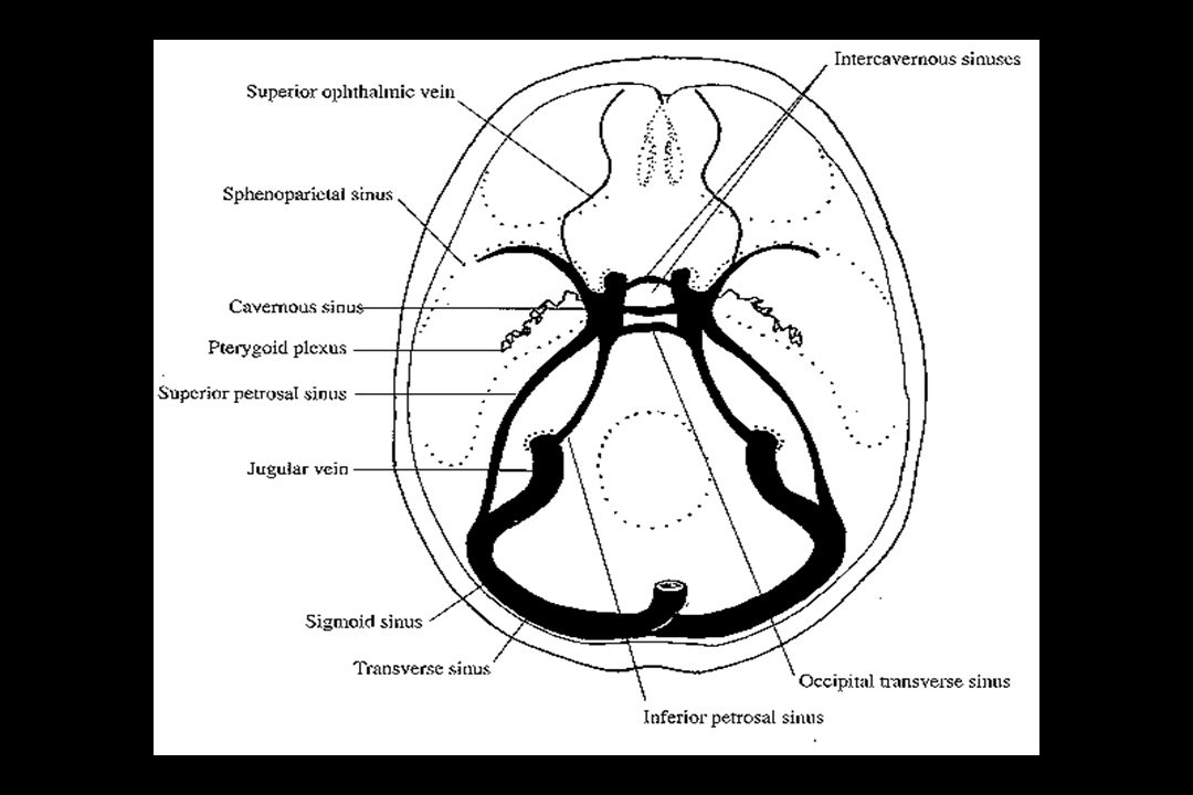 Schematic axial projection of the cavernous sinus and its venous anastomoses.