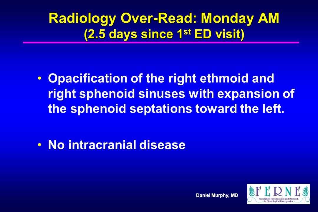Radiology Over-Read: Monday AM (2.5 days since 1st ED visit)