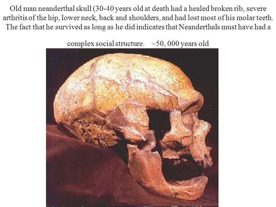 Old man neanderthal skull (30-40 years old at death had a healed broken rib, severe arthritis of the hip, lower neck, back and shoulders, and had lost most of his molar teeth.
