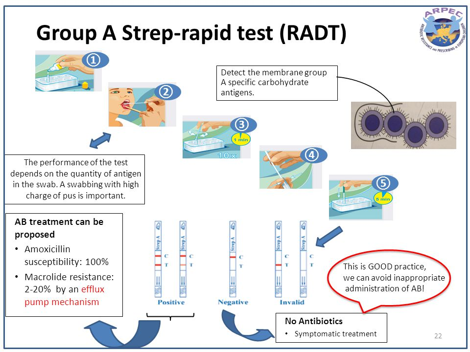 Group A Strep-rapid test (RADT)