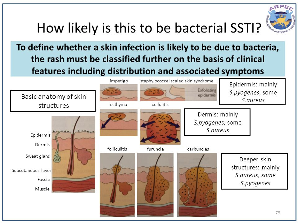 How likely is this to be bacterial SSTI