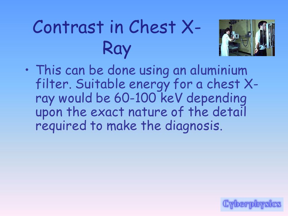 Contrast in Chest X-Ray