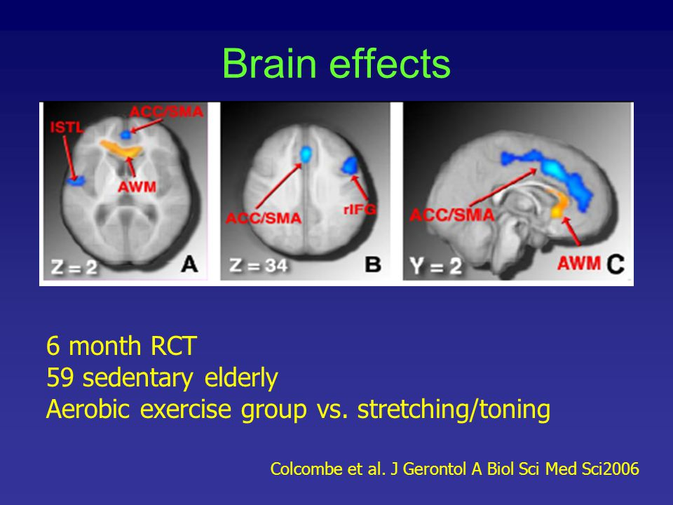 Brain effects 6 month RCT 59 sedentary elderly