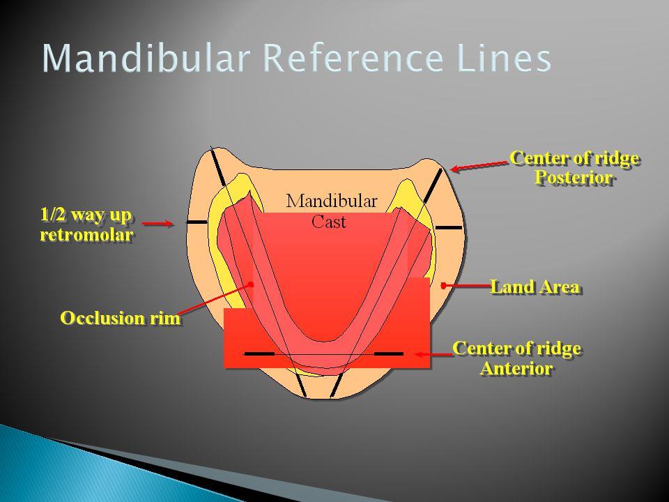 Mandibular Reference Lines