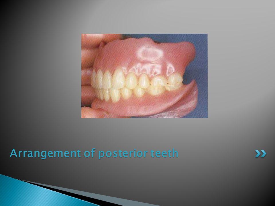 Arrangement of posterior teeth