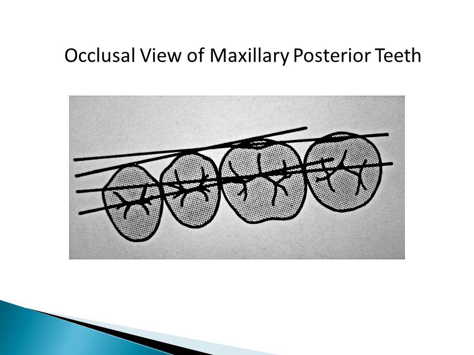 Occlusal View of Maxillary Posterior Teeth