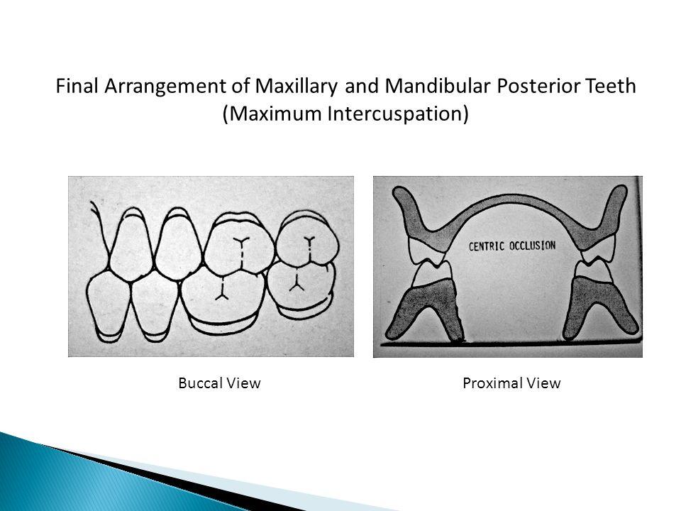 Final Arrangement of Maxillary and Mandibular Posterior Teeth