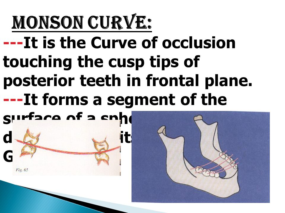 Monson Curve: ---It is the Curve of occlusion touching the cusp tips of posterior teeth in frontal plane.