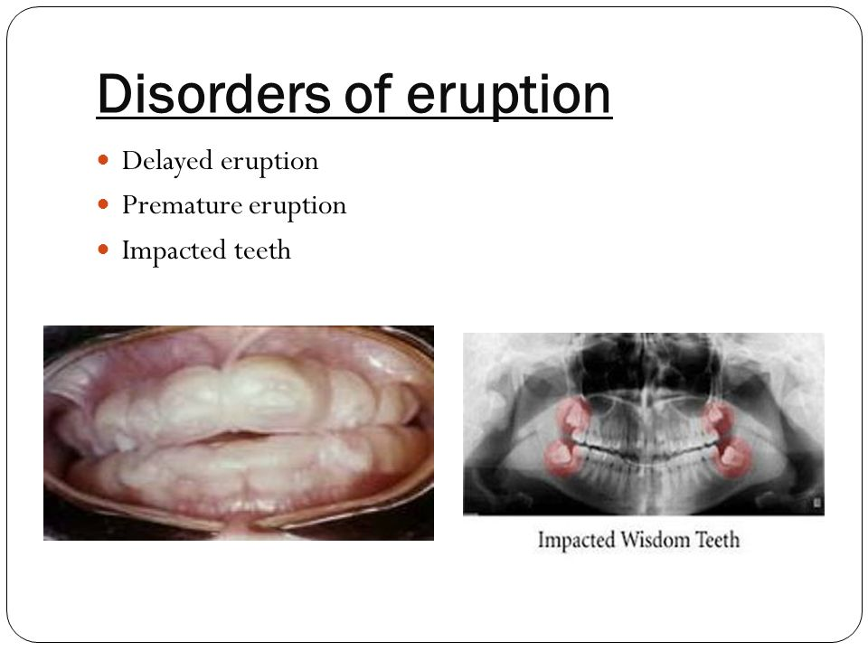 Disorders of eruption Delayed eruption Premature eruption