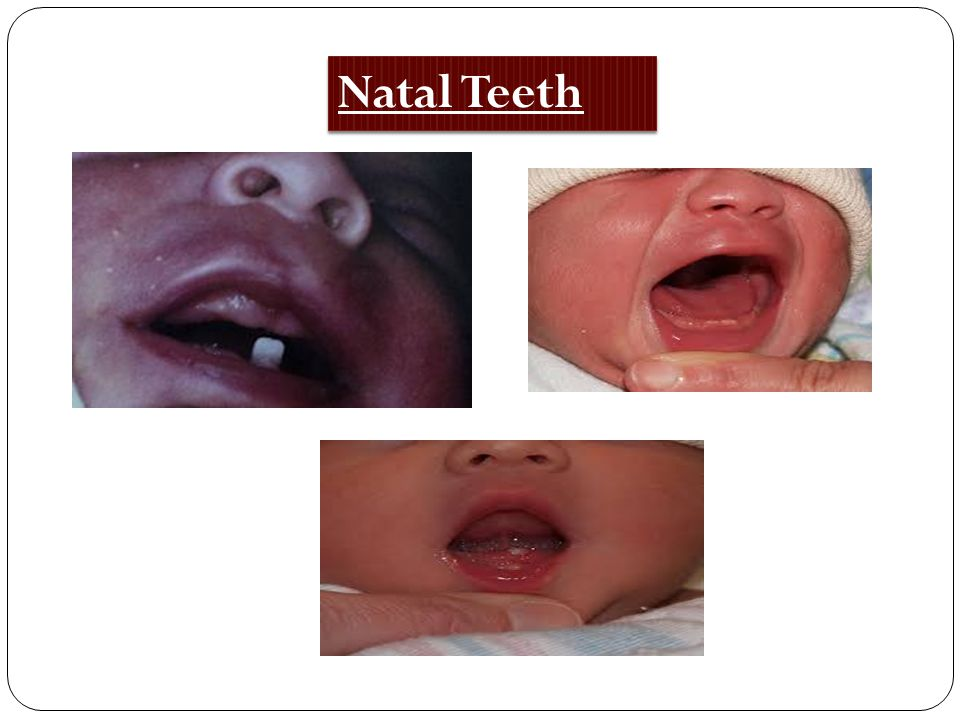 Natal Teeth