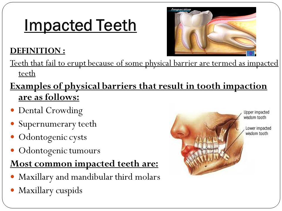 Impacted Teeth DEFINITION : Teeth that fail to erupt because of some physical barrier are termed as impacted teeth.