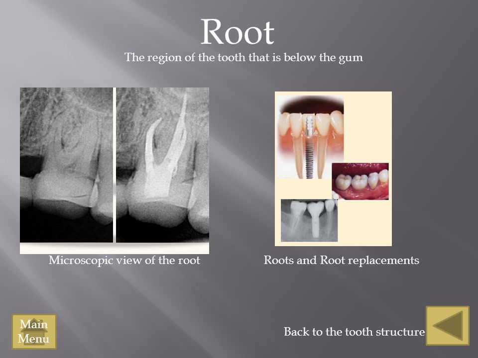 Root The region of the tooth that is below the gum