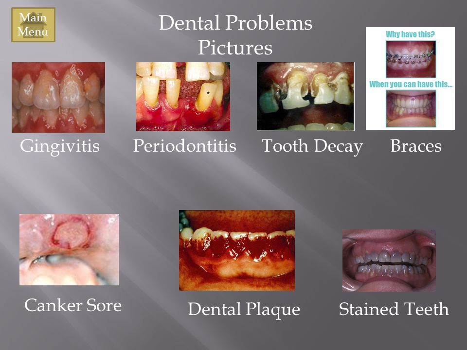 Dental Problems Pictures