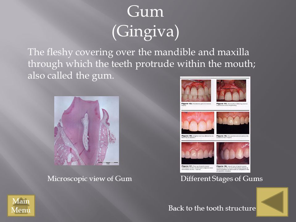 Gum (Gingiva) The fleshy covering over the mandible and maxilla through which the teeth protrude within the mouth; also called the gum.