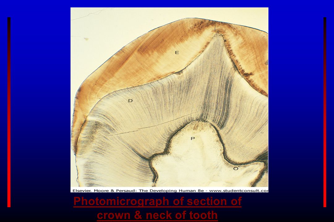 Photomicrograph of section of crown & neck of tooth