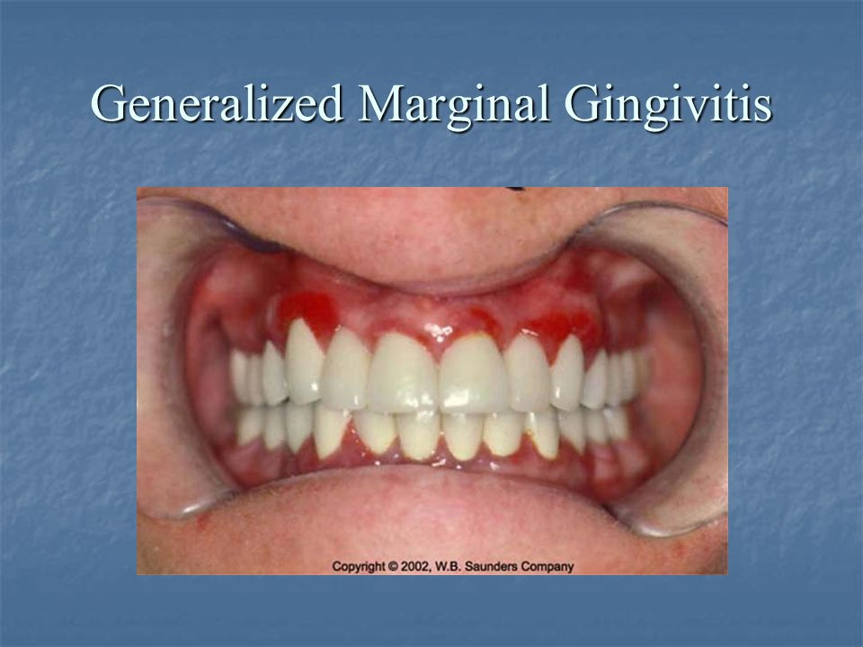 Generalized Marginal Gingivitis