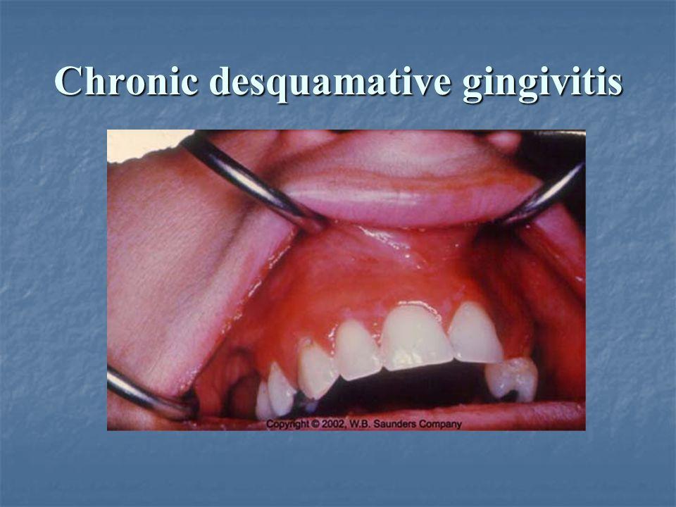 Chronic desquamative gingivitis