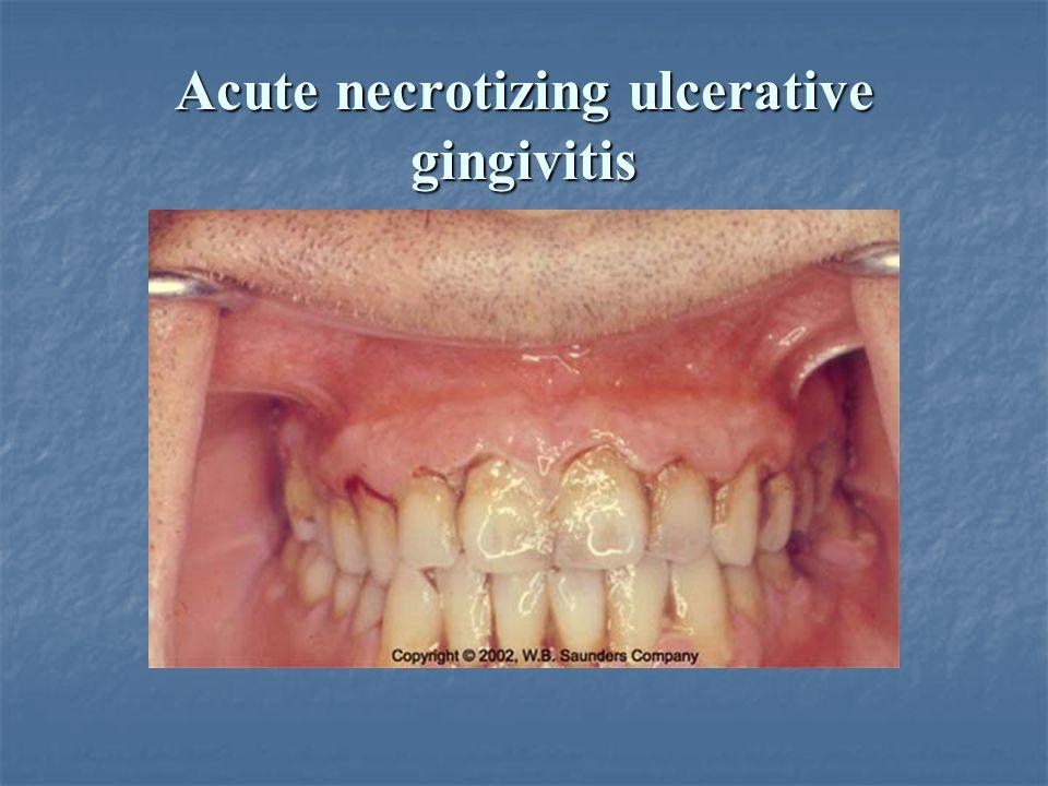 Acute necrotizing ulcerative gingivitis