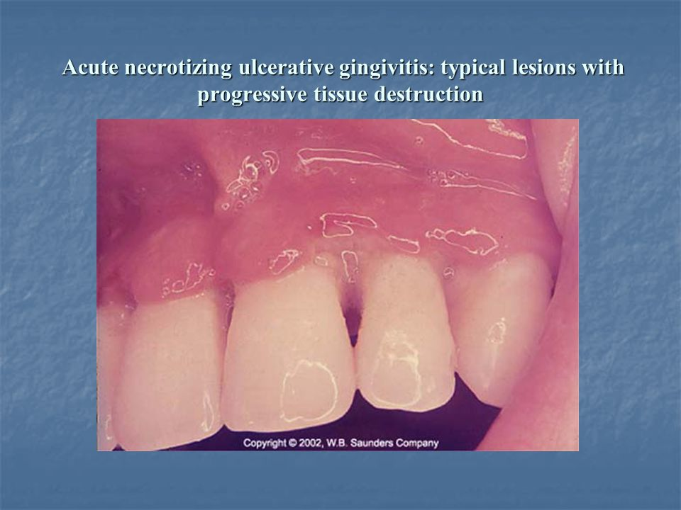 Acute necrotizing ulcerative gingivitis: typical lesions with progressive tissue destruction